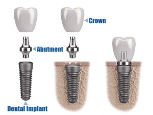 affordable dental implants graphic
