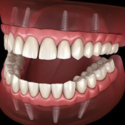 Partnering With the Best Dental Implant Dentist Near Me