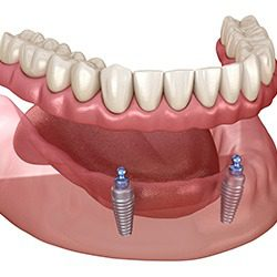 Biddulph Family Dental secure lower denture